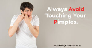Always avoid touching your pimples